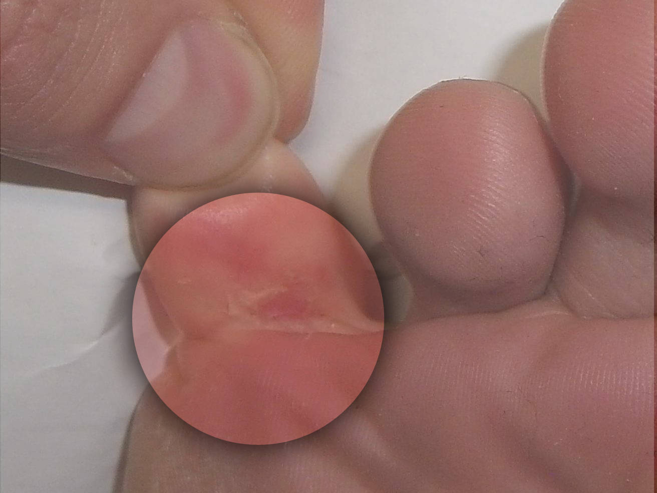 Treatment of fungal infection between toes