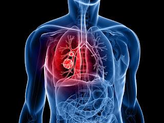Seorang peneliti kanker merefleksikan evolusi terapi kanker paru-paru