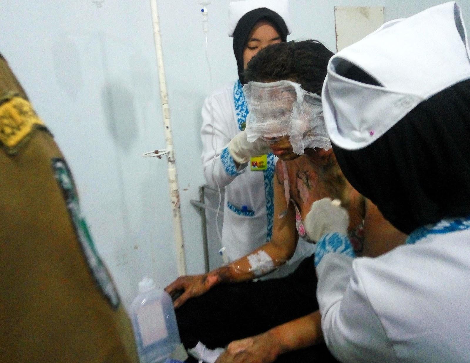 Perawat memberikan pertolongan medis kepada korban yang terbakar di IGD RSUD Kota Padangsidimpuan