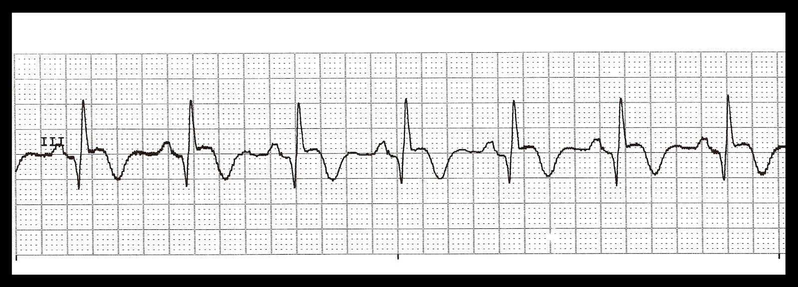 Float Nurse: Practice EKG Strips 311