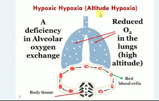 Respiratory system diseases is hypoxia