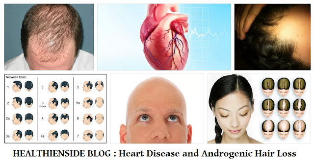Is Heart Disease Associated with Androgenic Hair Loss?