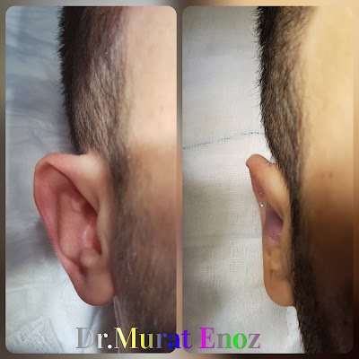 Otoplasty Operation For Protruding Ears in Istanbul