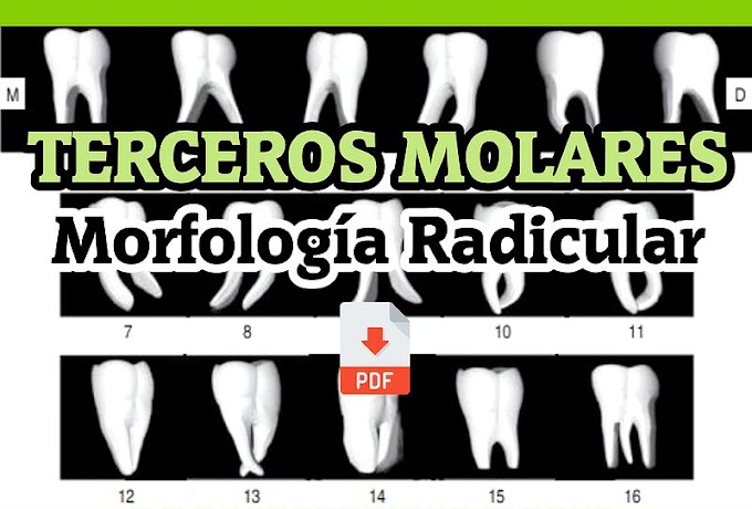 PDF: TERCEROS MOLARES - Morfología Radicular