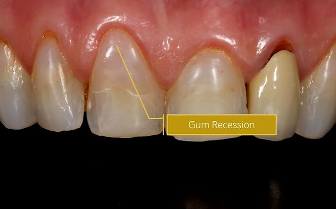 GUM RECESSION: Causes and treatment - Dr Gurs Sehmi