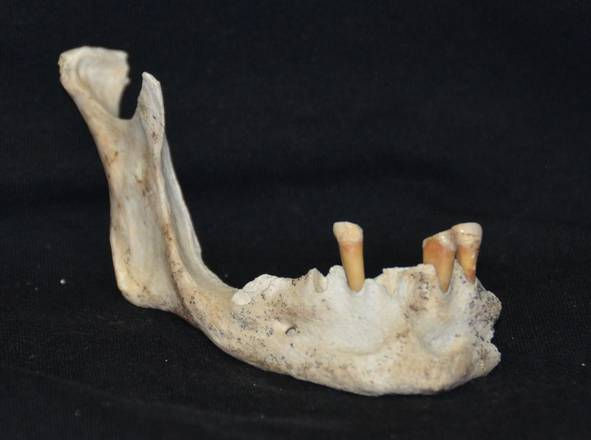 Residents of ancient Oplontis were healthy, but had dental problems