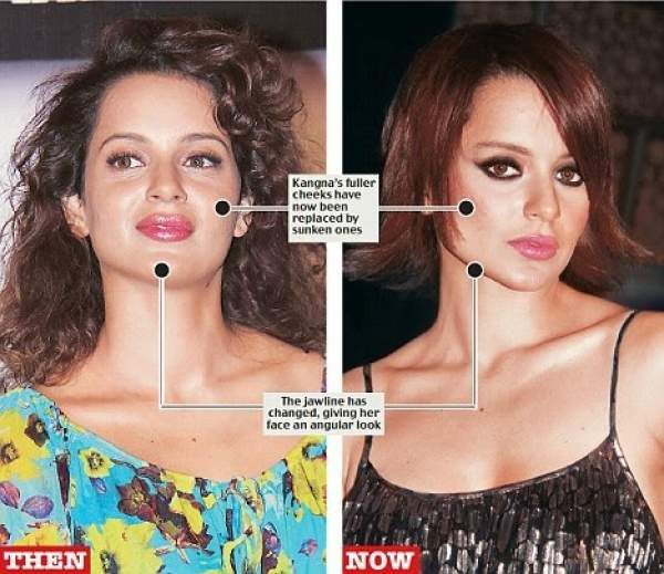 कंगना रनौत plastic surgery now and then