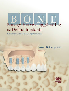 Bone Biology, Harvesting, Grafting For Dental Implants