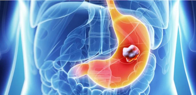 Waspadai Kanker Lambung yang Gejalanya Mirip Sakit Maag Biasa Berikut Ini!