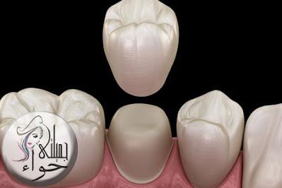 تركيب الاسنان الزيركون