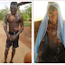 Graphic photos: #OMG Man left completely deformed after acid attack