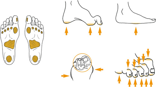 How to Avoid Diabetic Septic Foot Problems
