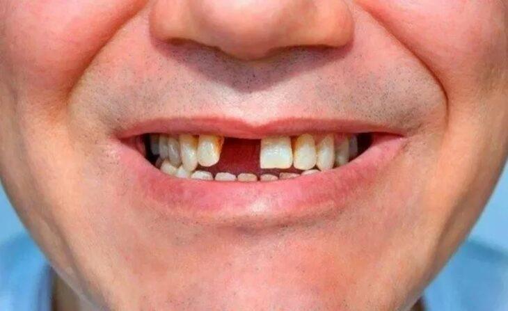 Pérdida de dientes sin dolor, la nueva y extraña secuela relacionada con el Covid-19