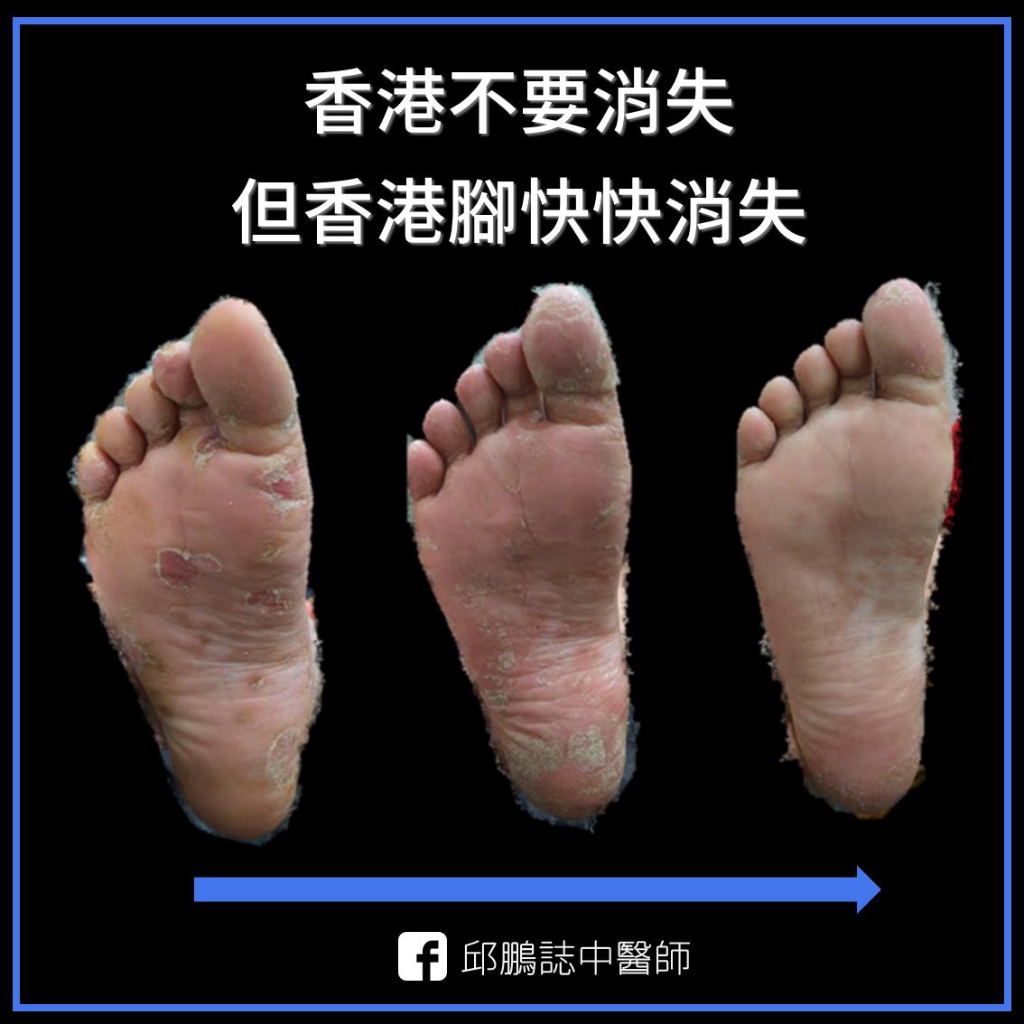 邱鵬誌 中醫師: 【案例】從腳底開始失控的香港腳