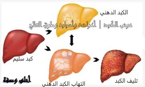 مرض الكبد   أعراضه وأسبابه وطرق العلاج