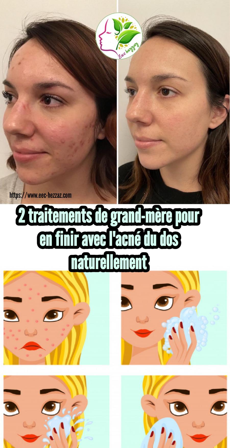 2 traitements de grand-mère pour en finir avec l'acné du dos naturellement