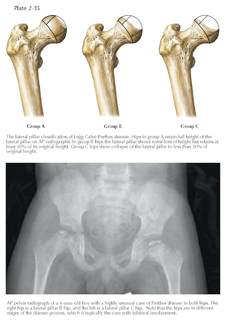 LEGG-CALVÉ-PERTHES DISEASE: LATERAL PILLAR CLASSIFICATION