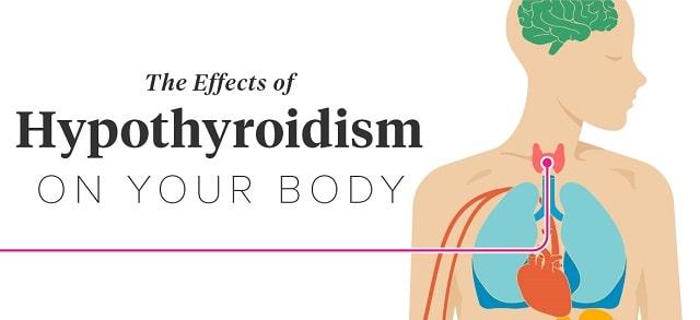 hypothyroidism symptoms low thyroid levels