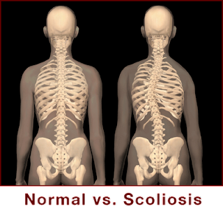 Pathophysiology of Scoliosis