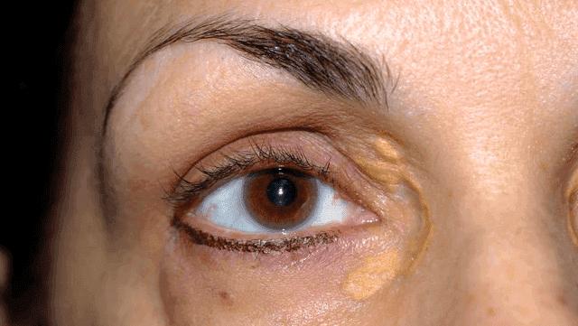 ما هي اللويحة الصفراء  وما هي اعراضه وطرق علاج