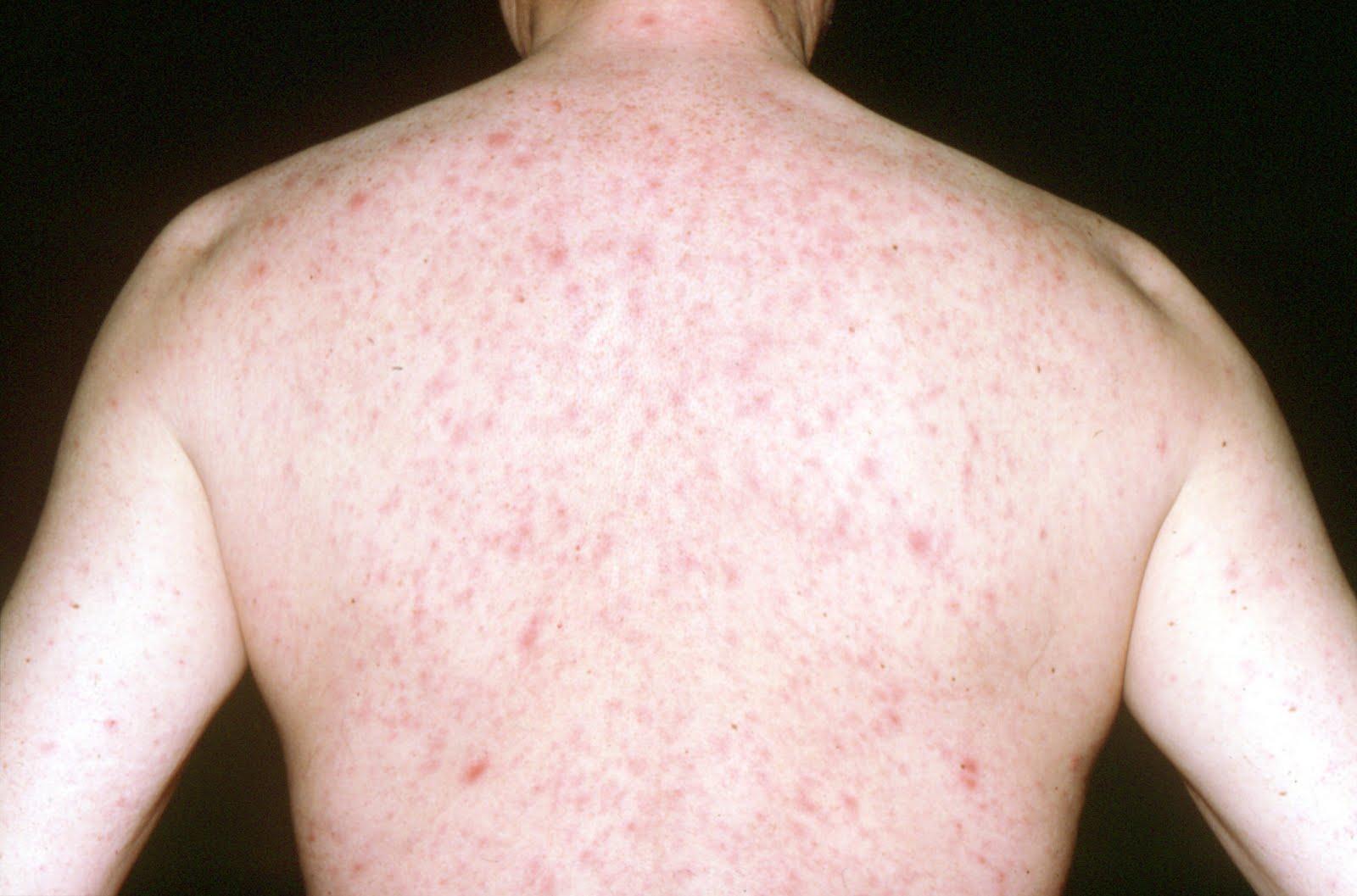 site de rencontre pour herpese