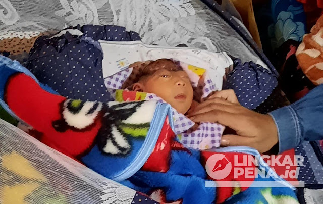 Bayi di Sukabumi Terlahir Tanpa Tempurung Kepala, Ortunya Hanya Buruh Batu Kapur