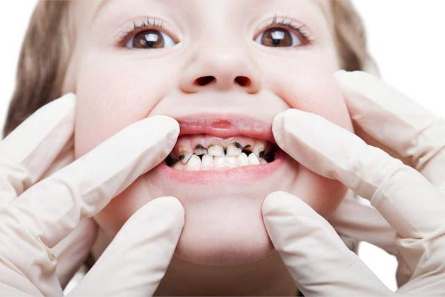 Cara Mencegah Gigi Keropos & Berkarang Untuk Kembalikan Sensasi Percaya Diri