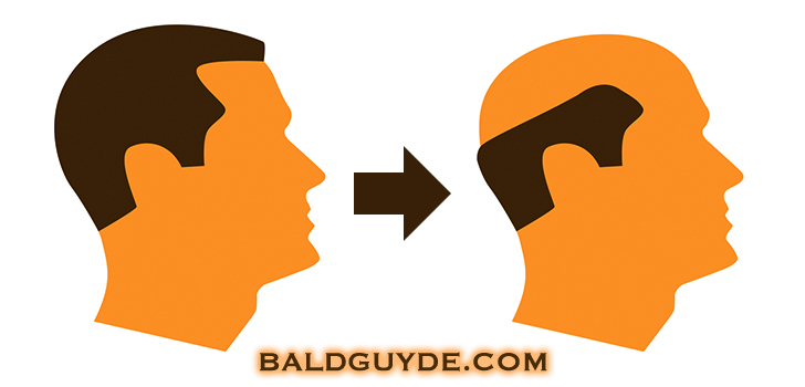 Androgenetic Alopecia A Visual Guide To Male Pattern Baldness And Hair Loss