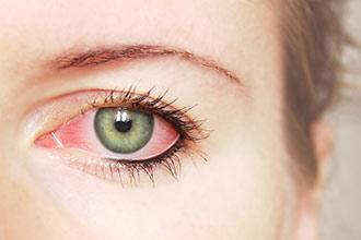 أسباب احمرار العين وطرق العلاج و نصائح للحفاظ على العين عند الأطفال