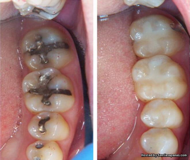 Dadah 'Alzheimer' Mampu Menumbuhkan Gigi Baru!