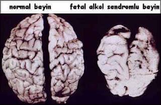Fetal alkol sendromu