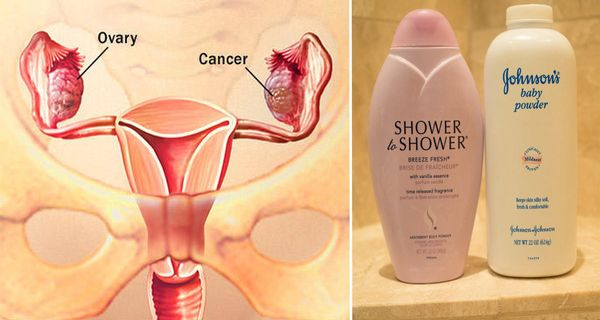 Johnson & Johnson To Pay $72M For Ovarian Cancer Death Linked To Talcum Powder