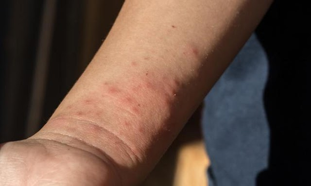 Το κόλπο για να μην σας τσιμπάνε τα κουνούπια