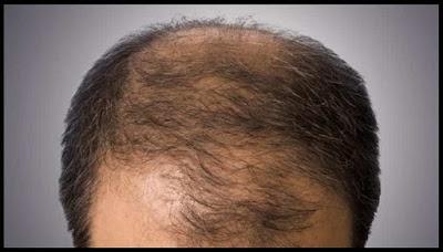बालों का झड़ना रोके जाने के लिए देशी उपाय,balo ka girna