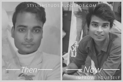 Hair loss treatment teens- in frame=SANGYANU