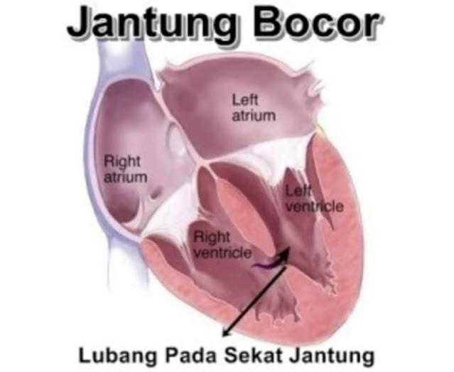 sakit jantung bocor