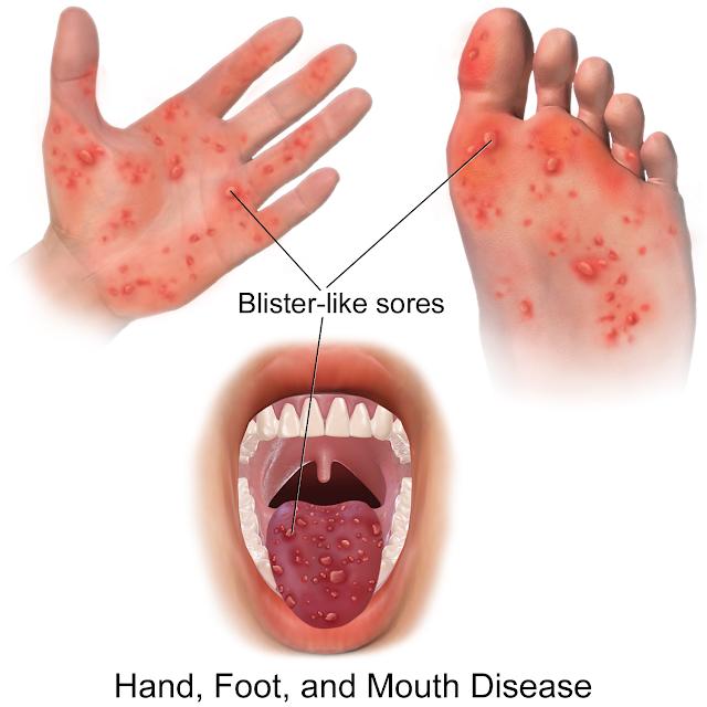 Penyakit Tangan, Mulut Dan Kaki (HMFD)
