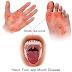 5 Cara Cegah Penyakit Tangan, Mulut Dan Kaki (HMFD)