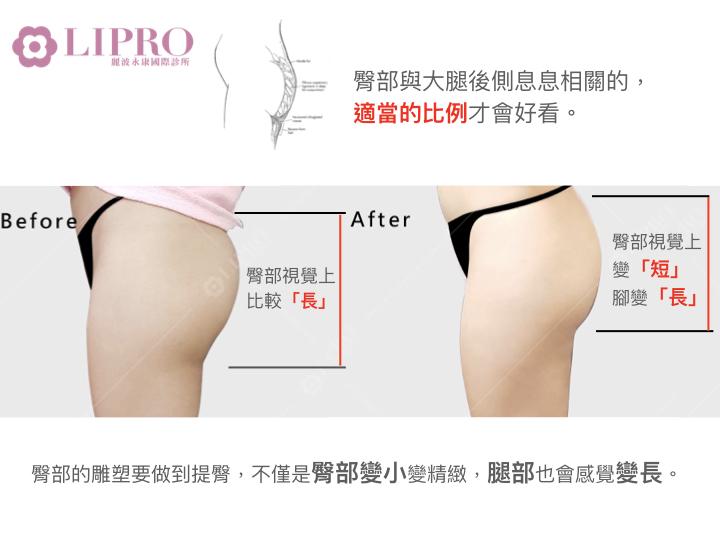 臀型的關鍵-大腿後側與臀部比例