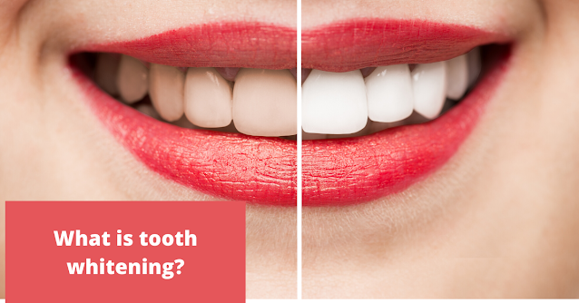 What is tooth whitening