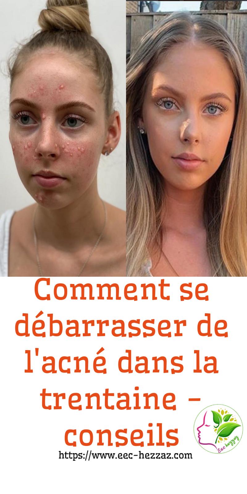 Comment se débarrasser de l'acné dans la trentaine - conseils