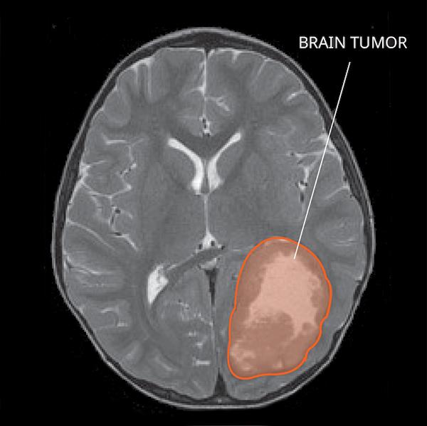 معلومات عن سرطان الجهاز العصبي المركزي