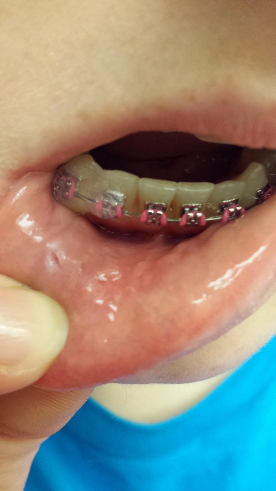 Stouffville Orthodontist Does My Braces: I'm a Dental ...