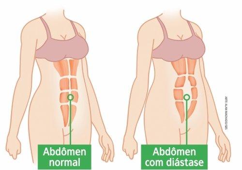 Abdômen normal e Abdômen com diástase