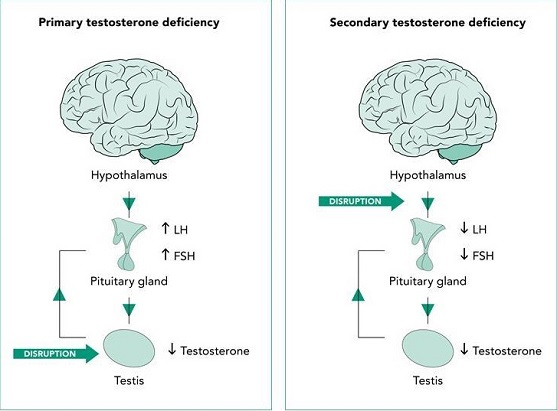 Primary and secondary testosterone deficiency
