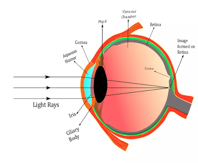 Eye Diagram , Myopia Diagram , Human eye