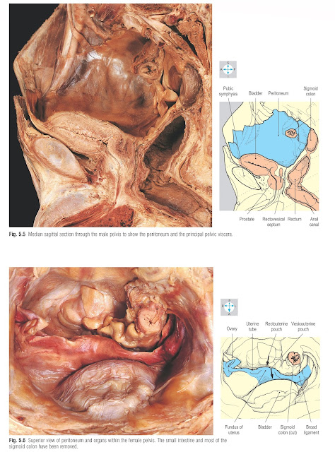 Superior view of peritoneum and organs within the female pelvis. The small intestine and most of the sigmoid colon have been removed.