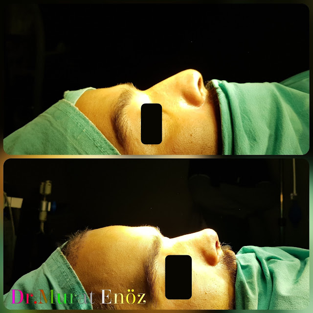 Nose Tip Plasty, Nose Tip Lifting,droopy nose tip,