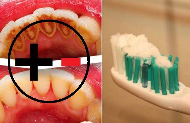 Inilah 12 Cara Memutihkan Gigi Secara Alami Yang Bakalan Membuat