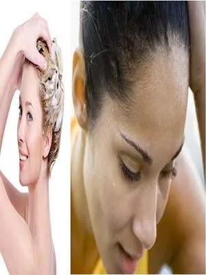 هل التعرق يسبب تساقط الشعر